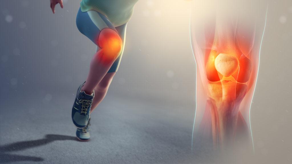 膝蓋靭帯炎はストレッチするな。